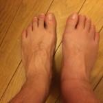 アキレス腱断裂後約6週間、手術後約4週間、装具4週目